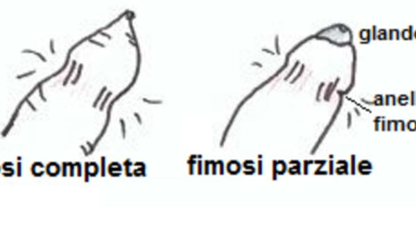 Fimosi