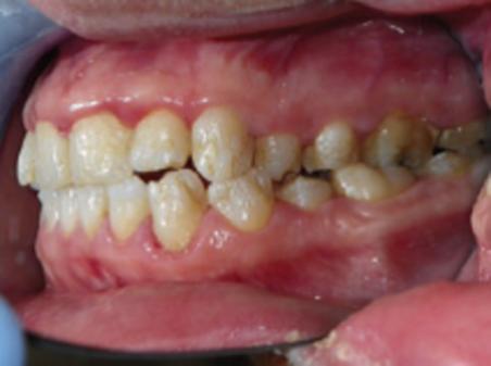 Epidermolisi bollosa: i problemi della bocca
