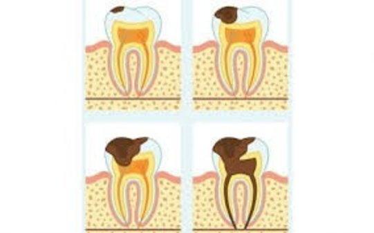 Carie dentale nei denti da latte e nei denti permanenti