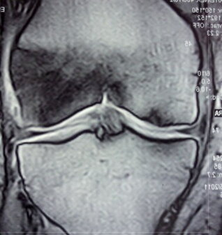 Osteonecrosi o necrosi asettica