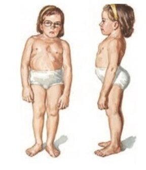 Displasia spondiloepifisaria congenita