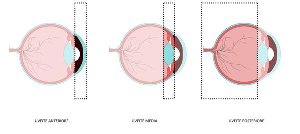 Artrite idiopatica giovanile: l'uveite/iridociclite