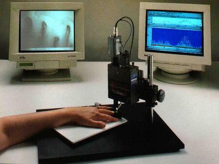 Capillaroscopia in età pediatrica