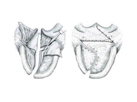 Labiopalatoschisi o labbro leporino