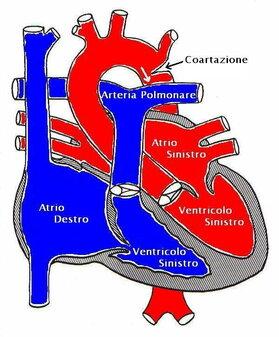Coartazione aortica