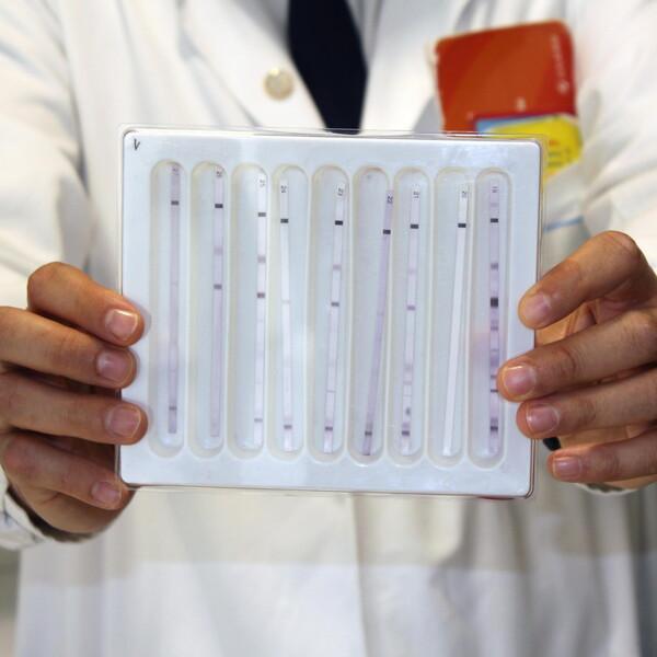 """HIV: test """"istantaneo"""" per controllare la carica virale residua nei bambini"""