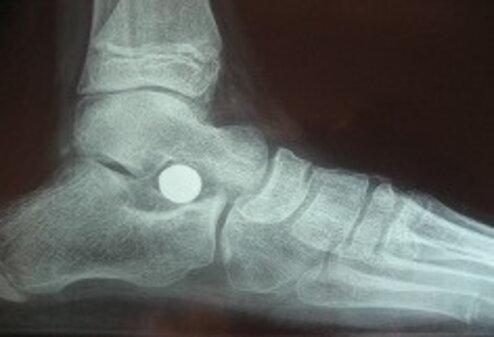 Sindrome di Down: i problemi ortopedici