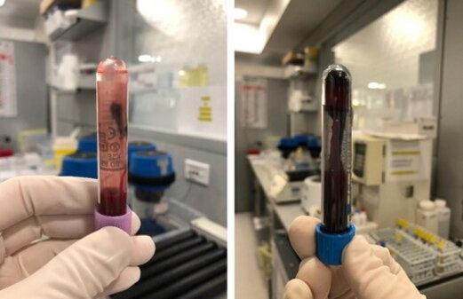 Non idoneità del campione biologico: il campione coagulato