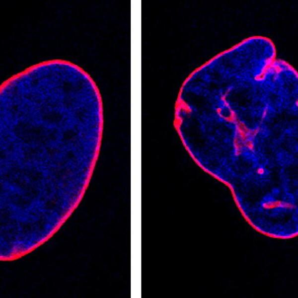 Malattie rare: scoperto nuovo meccanismo alla base dell'invecchiamento precoce