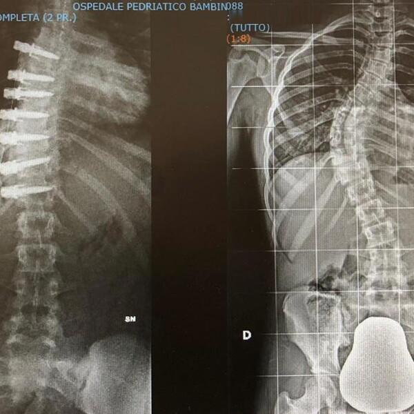 """Scoliosi: al Bambino Gesù si corregge con la chirurgia """"flessibile"""""""