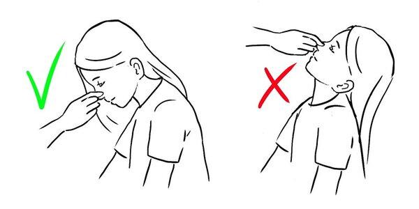 Sangue dal naso, che fare?