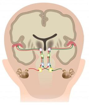 Sindrome di Down: deficit uditivi nei bambini