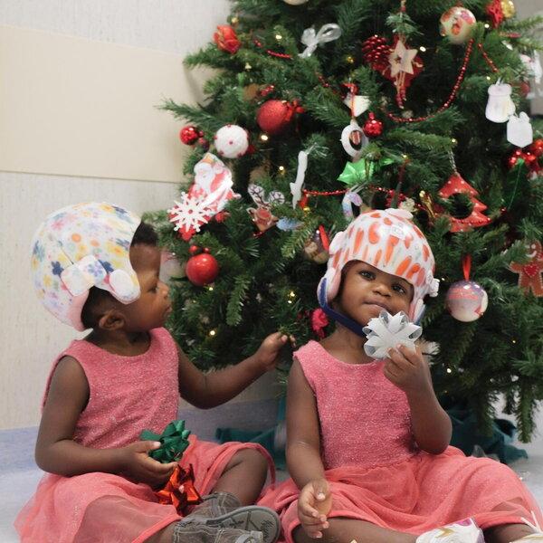 Il Natale in corsia delle gemelline siamesi