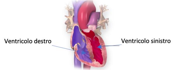 Scompenso cardiaco nei bambini