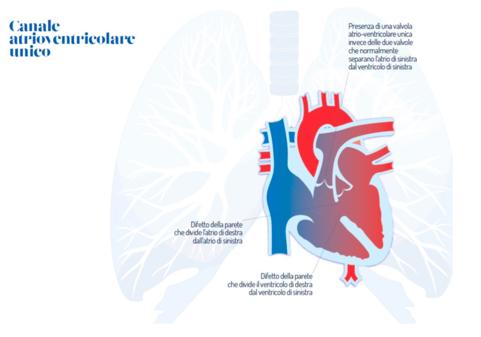Sindrome di Down e cardiopatie congenite