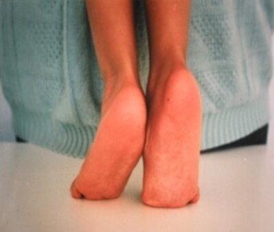 Paralisi cerebrale infantile: il piede equino