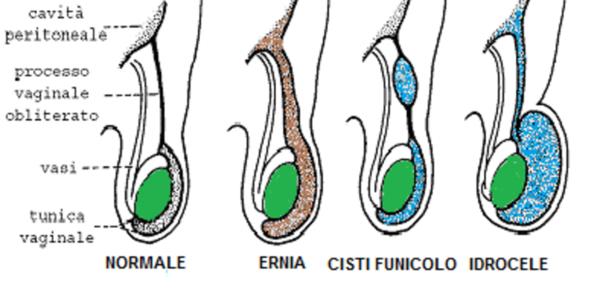 Ernia inguinale congenita