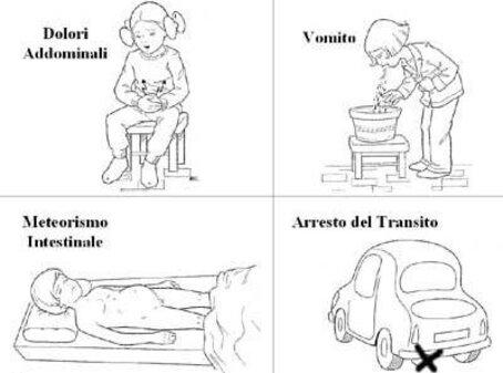 Occlusione intestinale