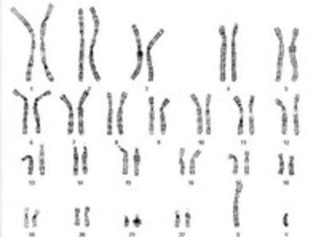 Malattie cromosomiche