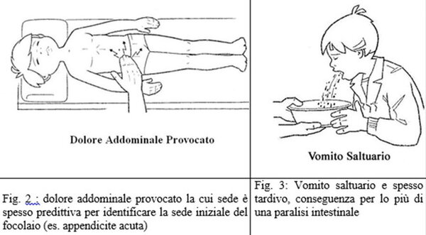 Peritonite Acuta