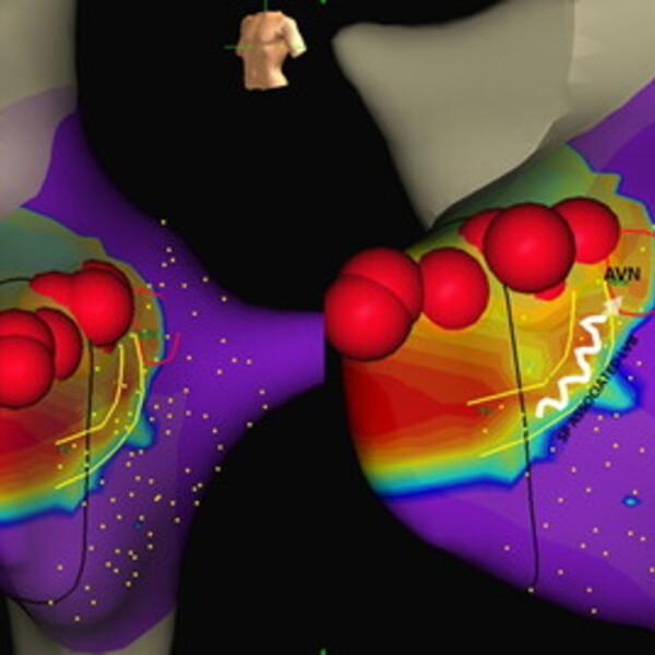 Tachicardie: nuova tecnica di ablazione più precisa e sicura con la mappa del voltaggio elettrico del cuore