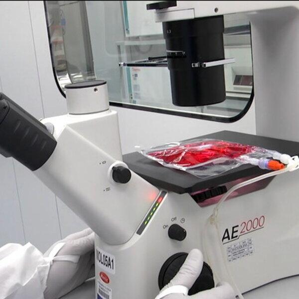Leucemia trattati primi tre bambini terapia CAR-T grazie innovativa produzione automatizzata