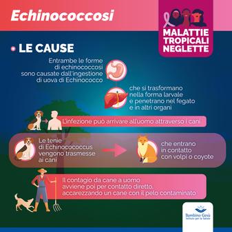 Echinococcosi cistica