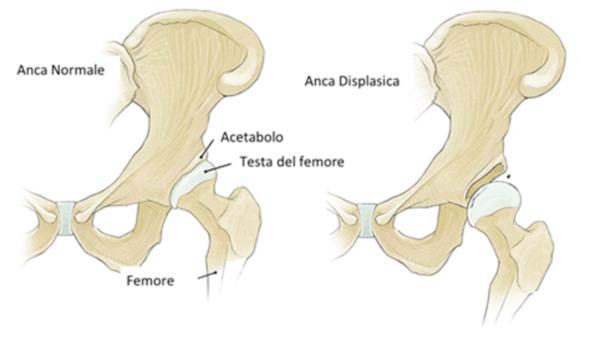 Displasia congenita o lussazione dell'anca